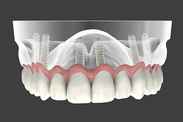 Implant-Supported-Dentures